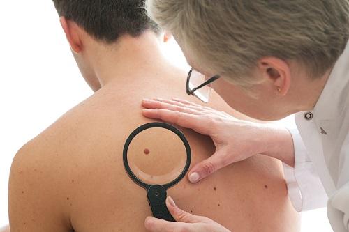 слънце, рак на кожата