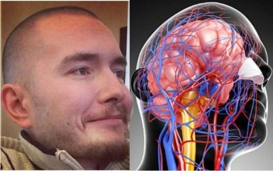 трансплантация на глава, Валерий Спиридонов