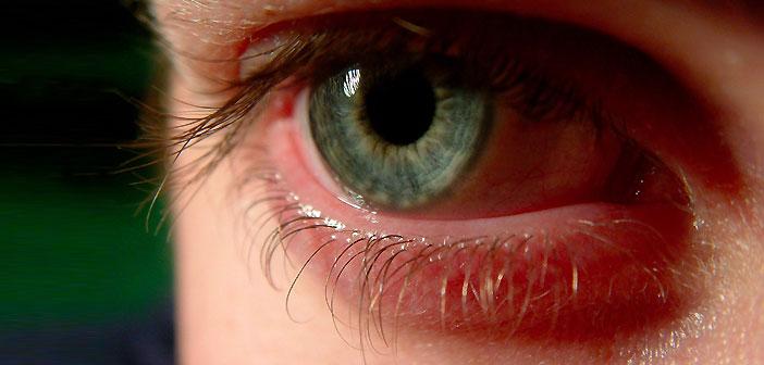 слепота, стволови клетки, очи
