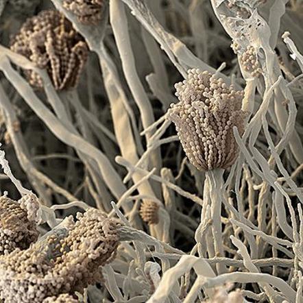 Asperigillus fumigatus, пране, сушене, болести