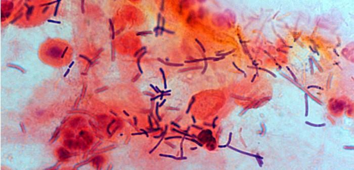Lactobacillus crispatus, СПИН