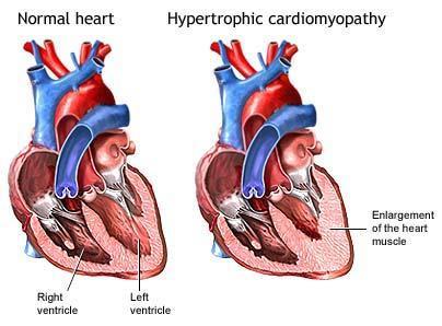 satrze -hypertonia