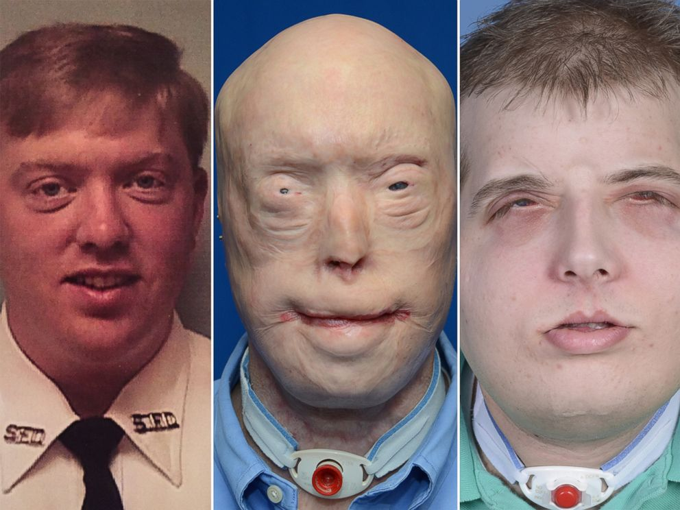 face-transplant-recovery1