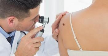 превръзка, рак на кожата
