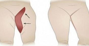 как да премахна мазнините по тялото