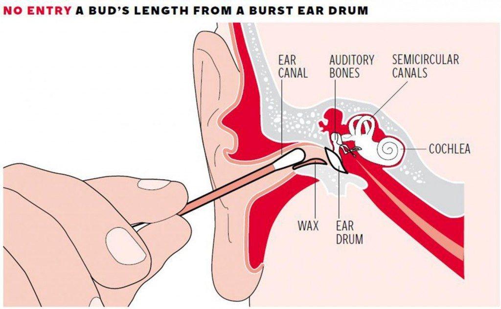 клечки за уши