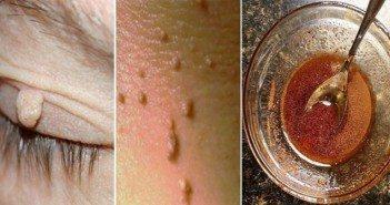 Как да премахнете лесно фиброми, папиломи и брадавици