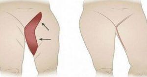 как да изчистим мазнините от тялото