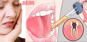 зъбобол се лекува с тези природни капки