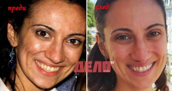 Елена Терзиева отслабна след прочистване и премахна акнето и главоболието
