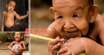 """""""Старец"""" от Бангладеш - дете на 4, което изглежда на 80"""