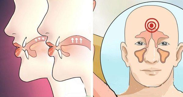 природен лек при хрема и синузит