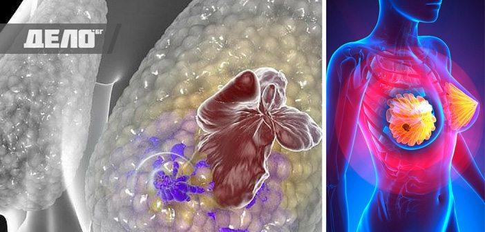 рак на гърдата се лекува без химиотерапия