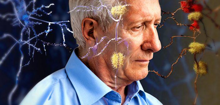 създадоха ново лекарство срещу Алцхаймер