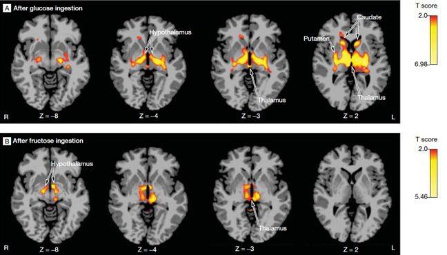 мозъкът ни произвежда фруктоза