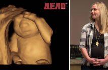 Тази жена ще роди детето си, за да дари органите му