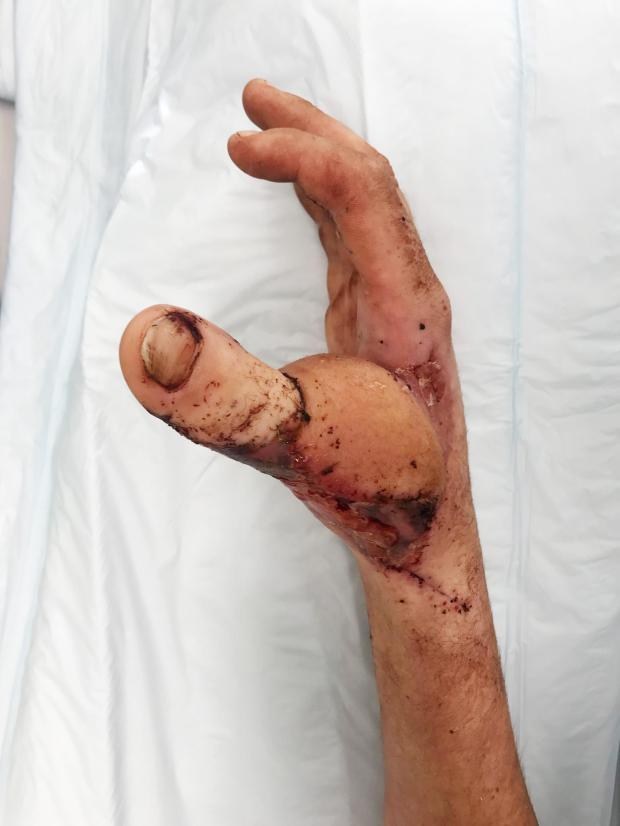 Присадиха пръст от крака на ръката на млад мъж