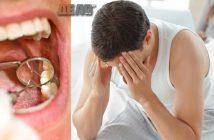 развалените зъби