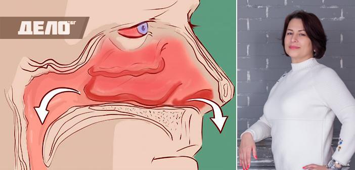 Запушен нос